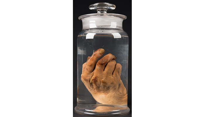 Preserved right hand of Dr. Daniel S. Lamb