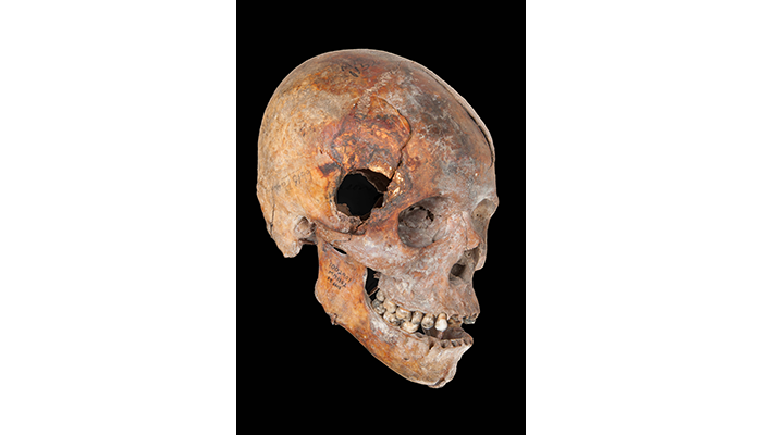 skull of a black Union soldier of the 54th Massachusetts