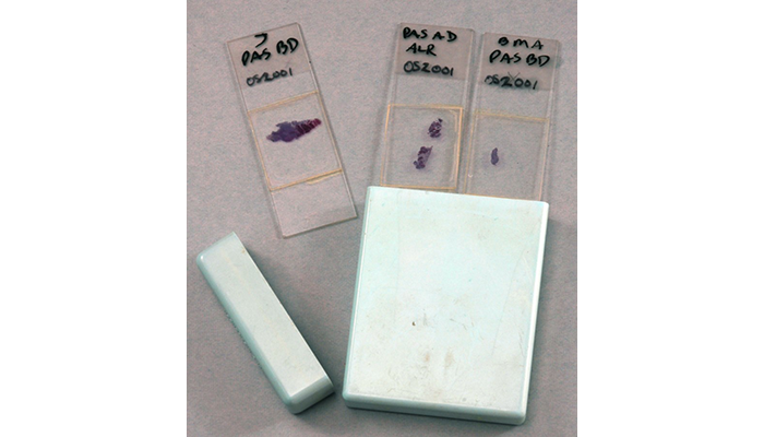Histology slides from a 1980 recut of President Cleveland's 1893 palatal tumor